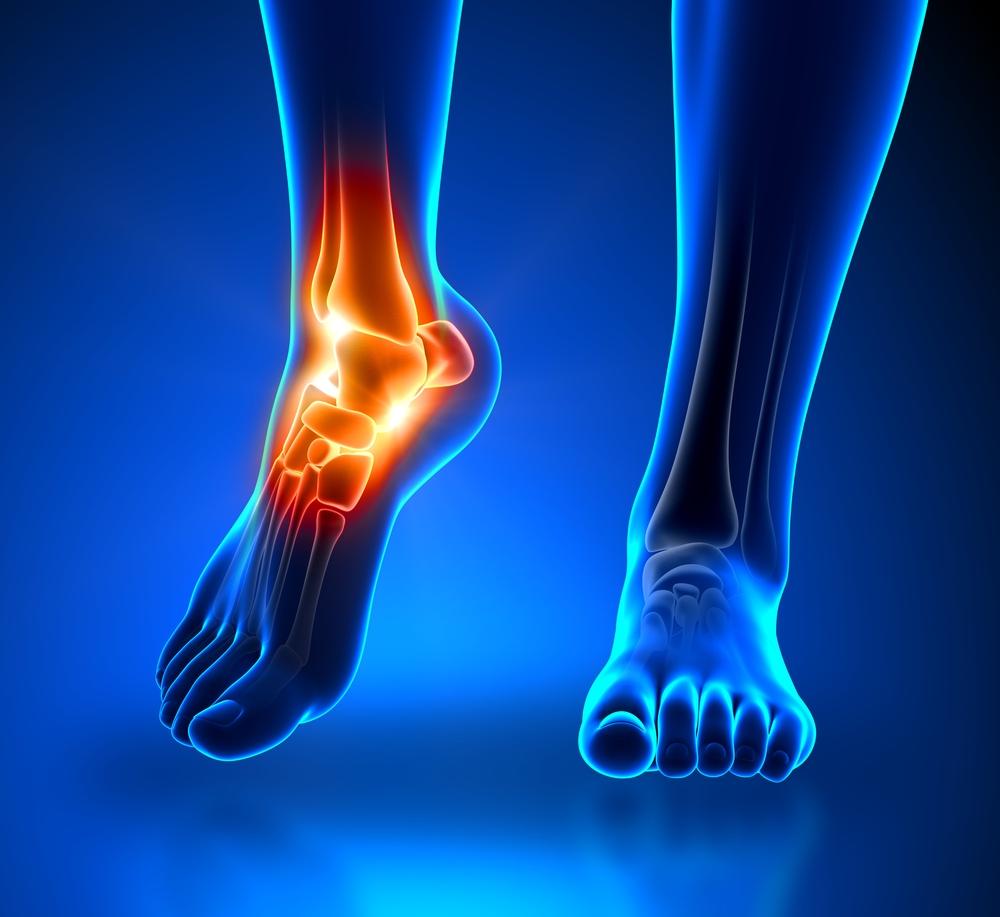 vitriol együttes kezelés során a térdízület oldalsó ínszalagjának sprain kezelése