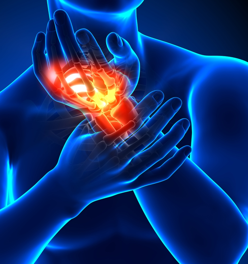 Boka torok - diagnózis és kezelés a csavart boka - Ortopédia -