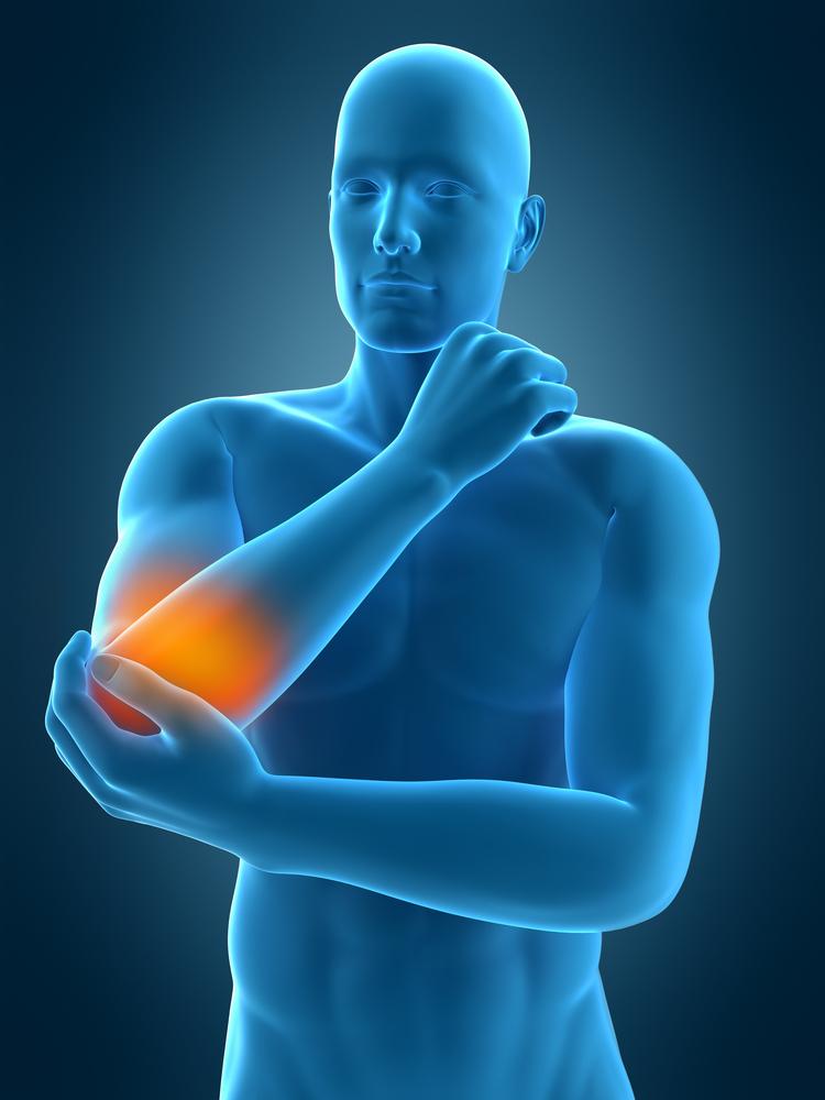 mit tegyen a könyökízület fájdalma miatt
